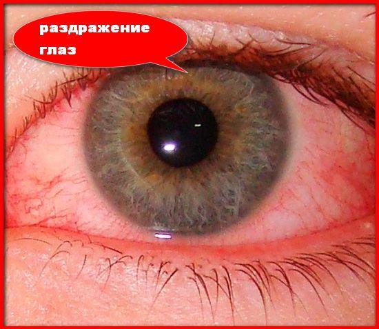 раздражение глаз из за стекловаты